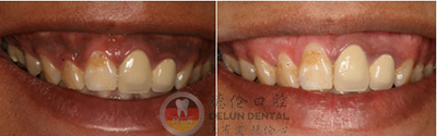牙龈发黑怎么办能治吗