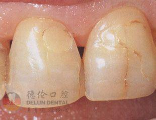 为什么门牙出现裂纹