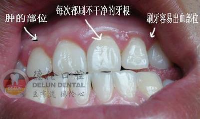牙周炎有什么要注意的