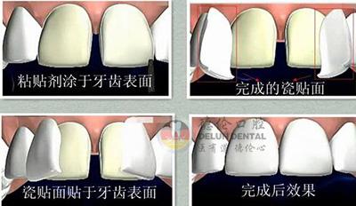牙齿上面为什么会有黄黄的斑块