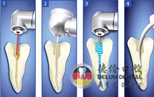 牙髓炎可以拔牙吗
