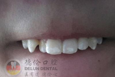 为什么门牙上有白斑