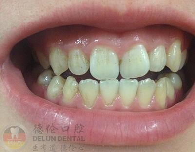 为什么门牙有黑斑