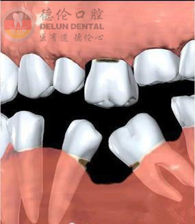牙齿倾斜怎么办