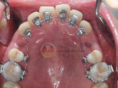 箍牙可以运动吗