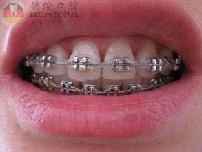 带上牙套后牙套上的托槽怎么刷干净