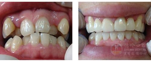 虎牙能矫正吗