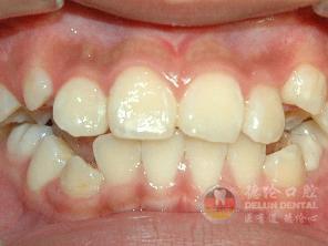 虎牙能不能磨平