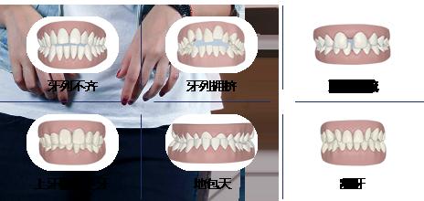 广州做牙齿矫正有没有副作用?