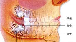 详解长智齿的原因和麻烦
