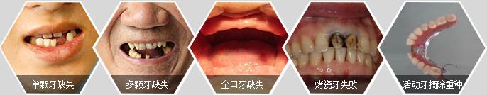广州哪家医院种植牙好