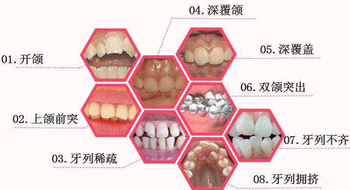 广州牙齿矫正哪家医院比较好