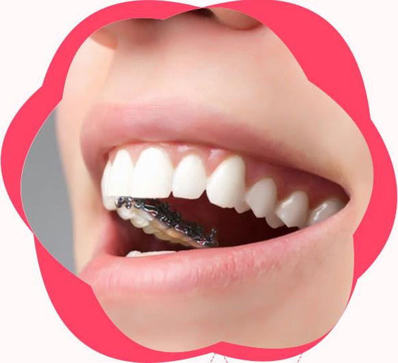 广州矫正牙齿哪家好