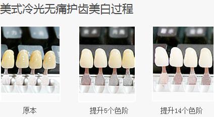 广州牙齿美白多少钱