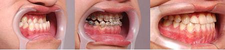广州牙齿矫正分期付款