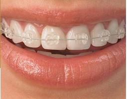 牙齿矫正后一定要戴保持器吗?