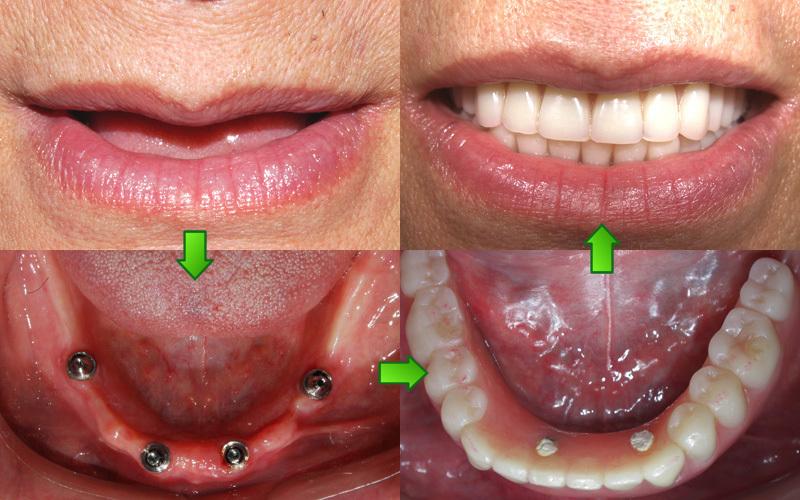 广州私立牙科医院排名