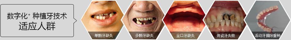 广州种植牙哪家医院最好