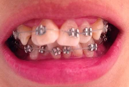在广州矫正牙齿多少钱