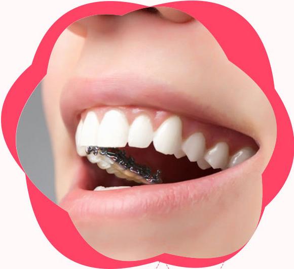 广州医院矫正牙齿