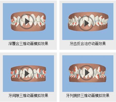 广州哪家做牙齿矫正好