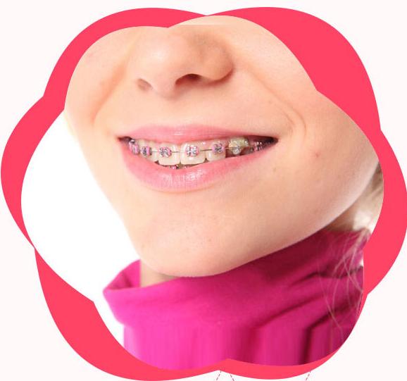 广州牙齿矫正医院哪个好