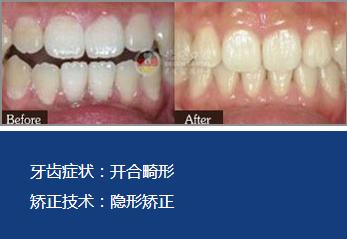 广州牙齿矫正哪里最好