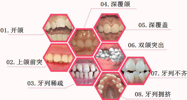 广州专业牙科医院排名