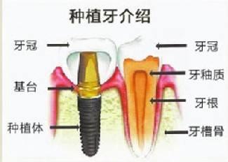 广州市牙科医院排名