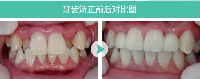 广州省口腔医院哪个好