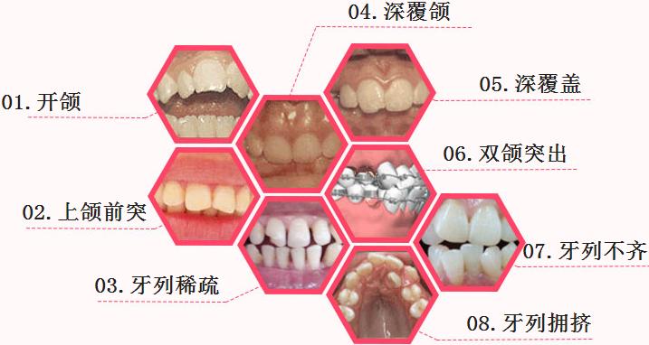 广州牙齿矫正需要多少钱