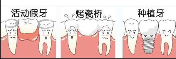 牙齿掉了怎么办