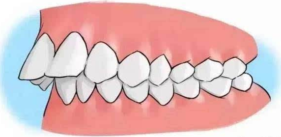 怎么看自己是不是龅牙