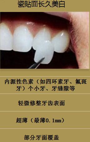 四环素牙齿怎么办