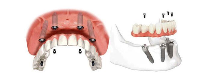 :选择的种植方案也会影响种植牙的费用:目前业内常用的种植牙方案包括显微种植、即刻种植、All-on-4种植等,针对半口牙缺失的修复,如果采用传统的种植牙技术就需要种很多颗牙齿,费用也就相应的要好多钱。但是如果采用All-on-4种植技术,只需4颗种植体就能完成修复,费用相比传统的种植牙要少很多。   2、患者的口腔情况会影响半口种植牙的价格:如果患者口腔状况良好,那么做起种植牙很轻松,价格就会便宜一些。相反,如果患者口腔出现牙槽骨吸收严重,缺牙部位存有残留的牙根,或者有牙周炎、牙龈炎等口腔炎症疾病,那么做