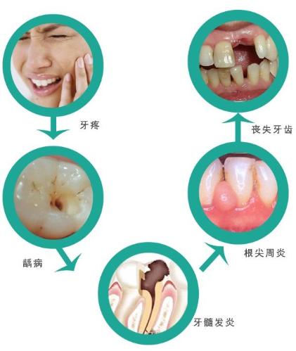 牙痛该怎么办