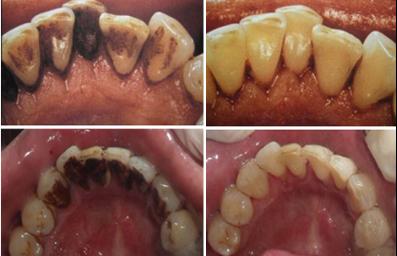 洗牙前后对比图-洗牙会损害牙齿吗