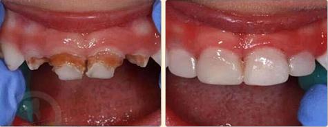 儿童蛀牙前后对比