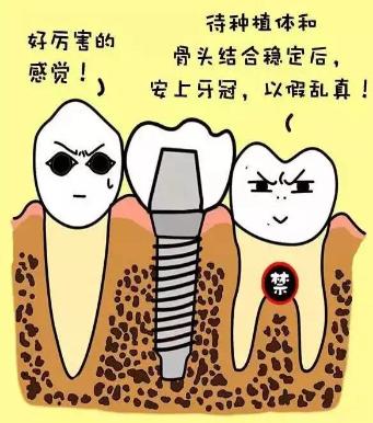 广州种植牙哪边医院好
