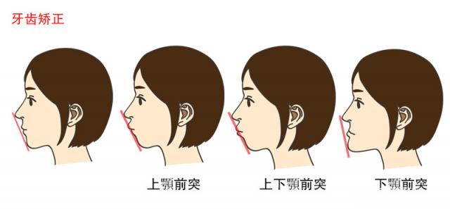牙齿畸形类型