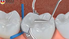 补牙修复过程