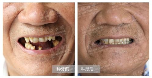 多颗牙缺失