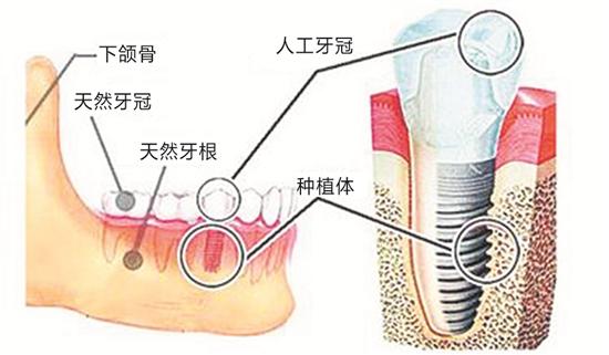 种植牙解析